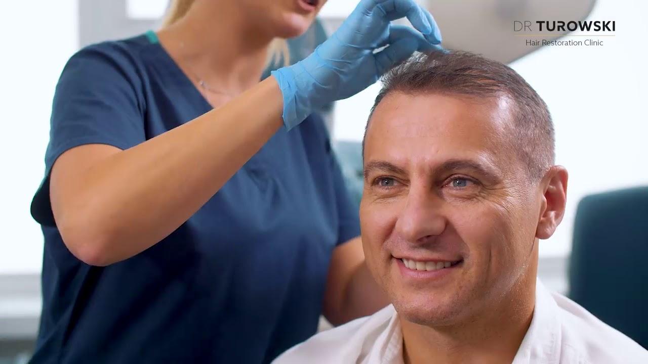 Piotr Świerczewski po zabiegu przeszczepu włosów